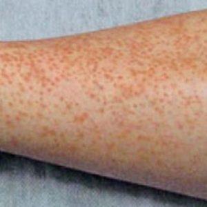 Аллергический васкулит: симптомы и лечение