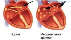 Аритмия сердца лечение народными методами