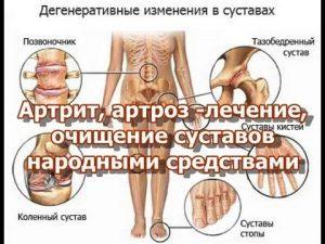 Артрит лечение народными методами