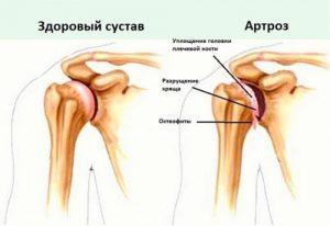 Артроз суставов Народное лечение