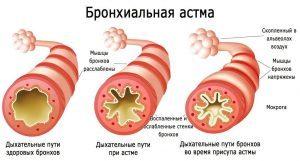 Бронхиальная астма лечение народными методами