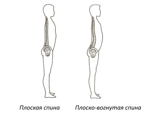 Что такое плосковогнутая спина?