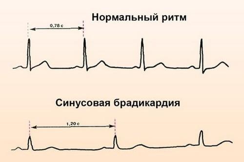 экг сердца