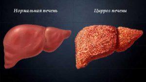 Цирроз печени лечение в домашних условиях