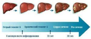Диагностика острого алкогольного гепатита
