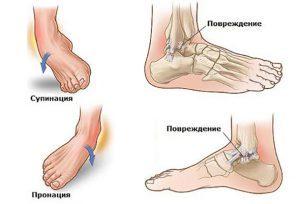 Диагностика травмы голеностопного сустава