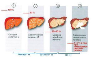 Диета при заболеваниях печени: хроническом гепатите и циррозе печени