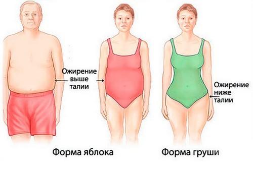 ozhirenie-u-pozhilykh-forma-figuri