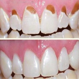 Эрозия зубной эмали: причины и лечение