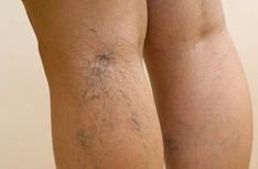 Физические упражнения при варикозе ног.