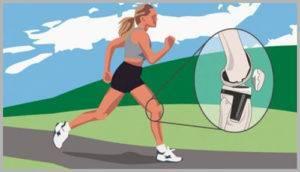 Бег противопоказан при артрите коленного сустава