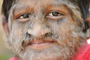 Гипертрихоз (волосатость) лечение народными методами