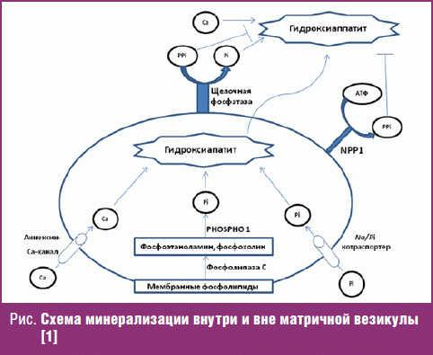 Схема минерализации внутри и вне матричной везикулы
