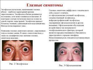 Глазные болезни лечение народными методами