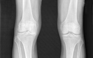Гонартроз коленного сустава 3 степени диагностируется, когда гиалиновый хрящ, покрывающий головки берцовой и бедренной костей, стирается почти полностью