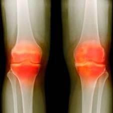 Гонартроз коленных суставов