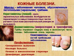 Грибковые заболевания кожи (микозы) лечение в домашних условиях