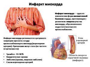 Инфаркт миокарда лечение народными методами