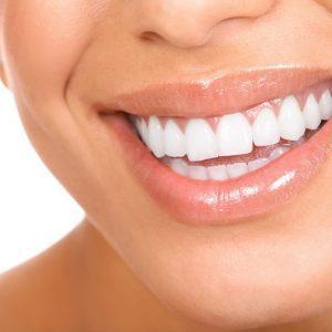Капа стоматологическая для выравнивания зубов