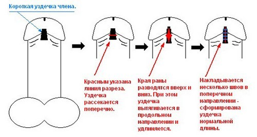 Схема френулотомии