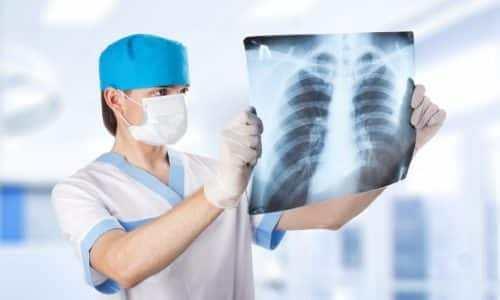 Рентген, эзофагогастроскопия и эзофагоманометрия - самые точные методы диагностики аксиальной выпуклости пищеводного отверстия диафрагмы