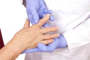Лечение артрита кисти рук