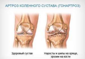 Лечение гонартроза коленного сустава