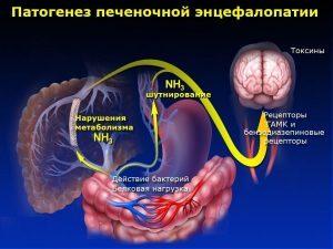 Лечение печеночной энцефалопатии