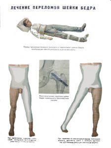Лечение переломов шейки бедра
