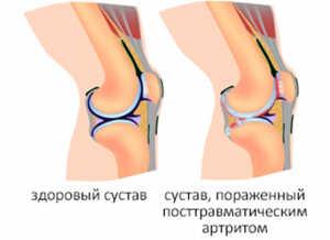 Лечение посттравматического артрита