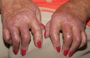 Лечение псориатического артрита