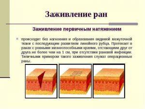 Лечение ран в домашних условиях