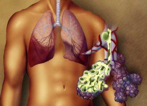 Лечение хламидийной пневмонии