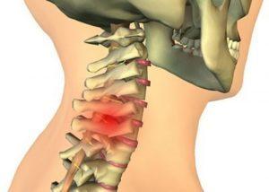 Лечение защемления нерва в шейном отделе позвоночника