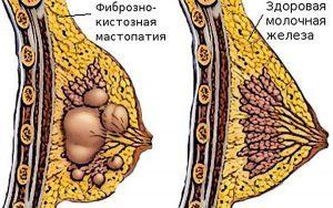 Мастопатия лечение в домашних условиях