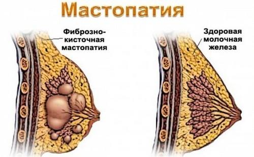 Fibrozno-kistoznaya_mastopatiya