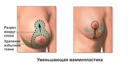 Как уменьшить грудь: последствия операций