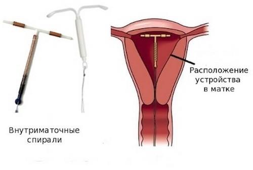 kontracipcia