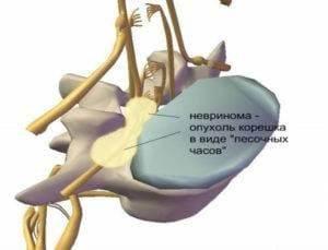 Невринома позвоночника