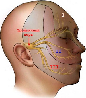 Новый подход к облучению тройничного нерва