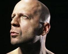 Облысение у мужчин: почему выпадают волосы на голове и как с этим бороться?