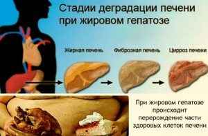 Ожирение печени лечение в домашних условиях