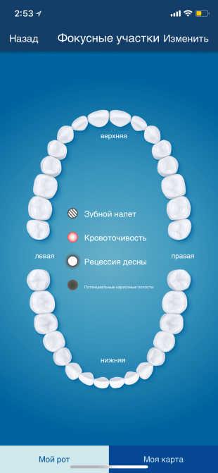 Электрическая зубная щётка. Фокусные участки