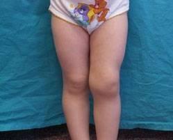 Артрит коленного сустава бывает у детей, как правило, реактивного типа