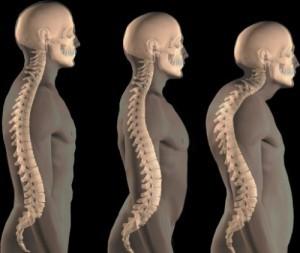 Причины развития и терапия позиционного кифоза