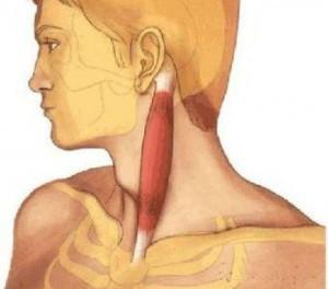 Причины развития, проявления и терапия цервикальной дистонии