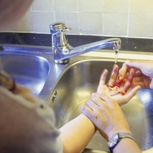 Профилактика столбняка при ранах у детей: как проводится?