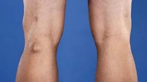 Проявления и терапия синовиальной кисты коленного сустава