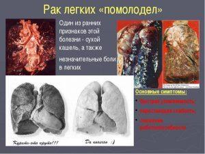 Рак легких лечение в домашних условиях