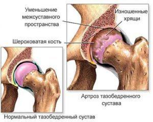 Разновидности коксартроза тазобедренного сустава